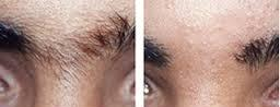 Hair Removal Eyebrows