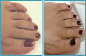 Hair Removal Toes