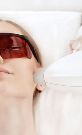 IPL Treatments